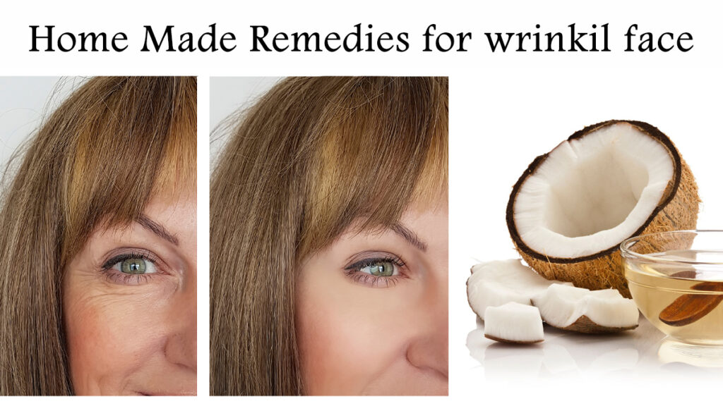 Home remedies, which can provide relief from facial wrinkles